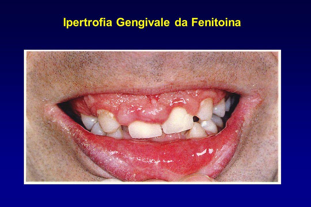 Ipertrofia Gengivale da Fenitoina