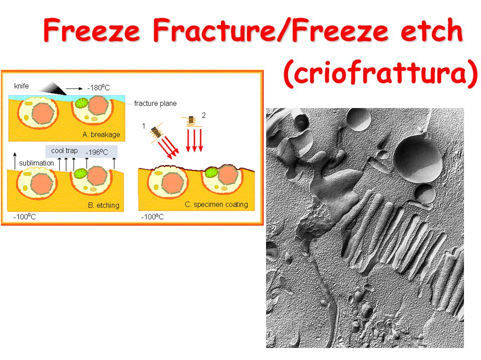 Freeze Fracture/Freeze etch