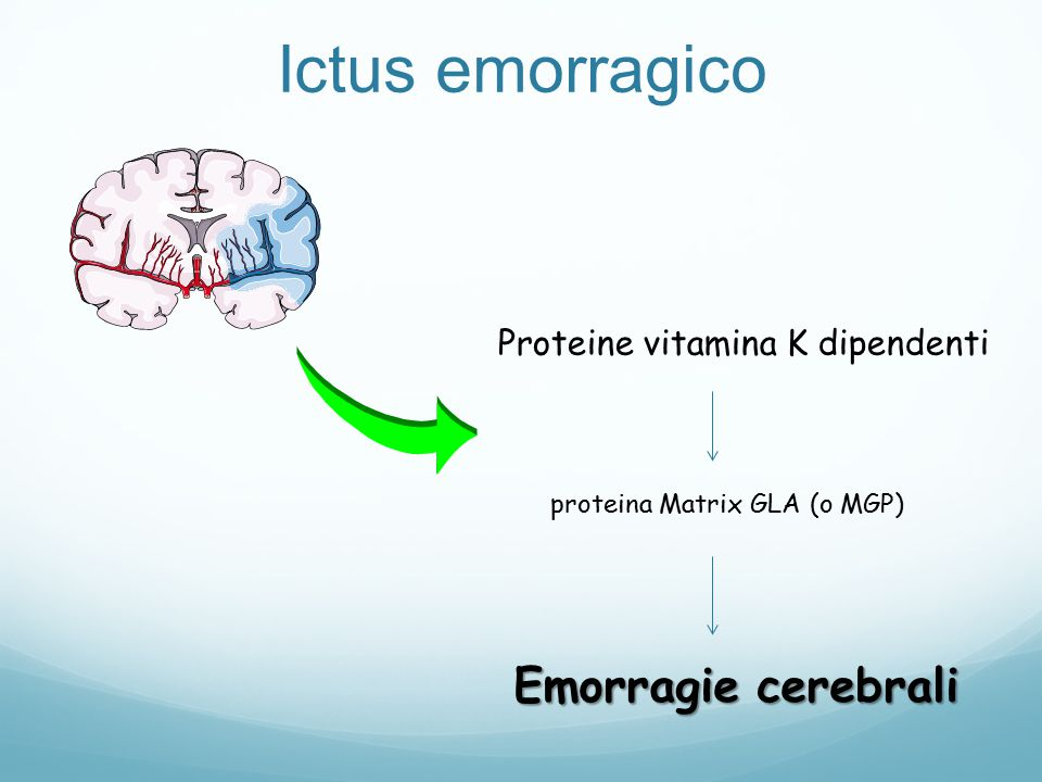 Ictus emorragico Emorragie cerebrali Proteine vitamina K dipendenti