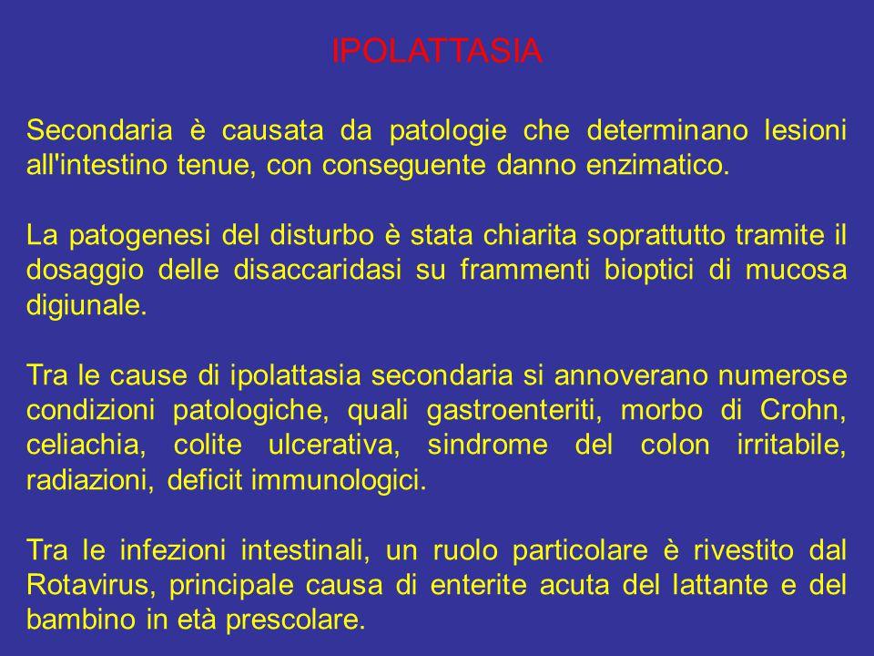 IPOLATTASIA Secondaria è causata da patologie che determinano lesioni all intestino tenue, con conseguente danno enzimatico.