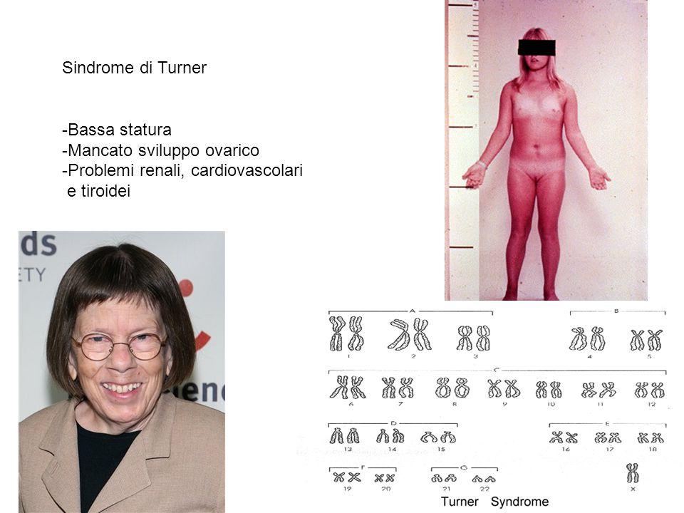 Sindrome di Turner -Bassa statura. Mancato sviluppo ovarico.