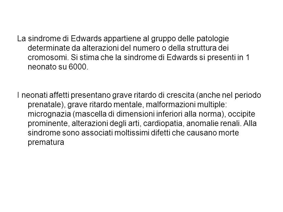 La sindrome di Edwards appartiene al gruppo delle patologie determinate da alterazioni del numero o della struttura dei cromosomi. Si stima che la sindrome di Edwards si presenti in 1 neonato su 6000.