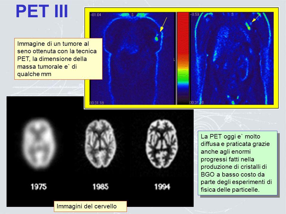 PET III Immagine di un tumore al seno ottenuta con la tecnica PET, la dimensione della massa tumorale e` di qualche mm.