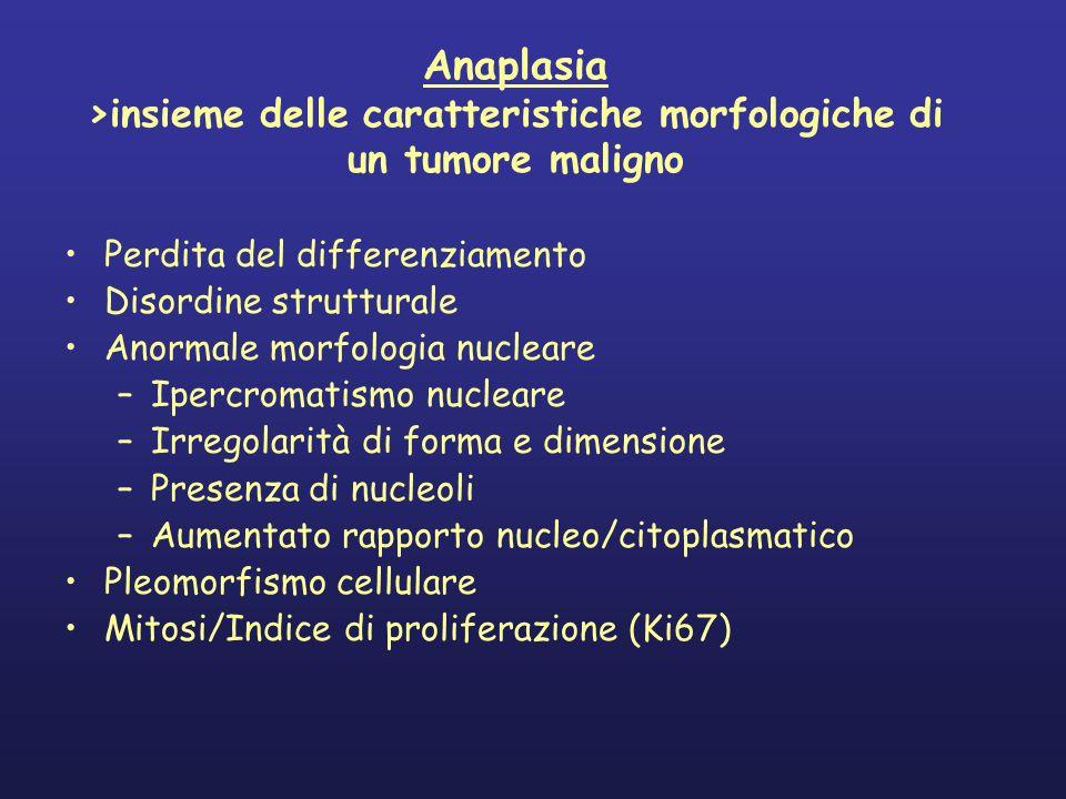 Anaplasia >insieme delle caratteristiche morfologiche di un tumore maligno