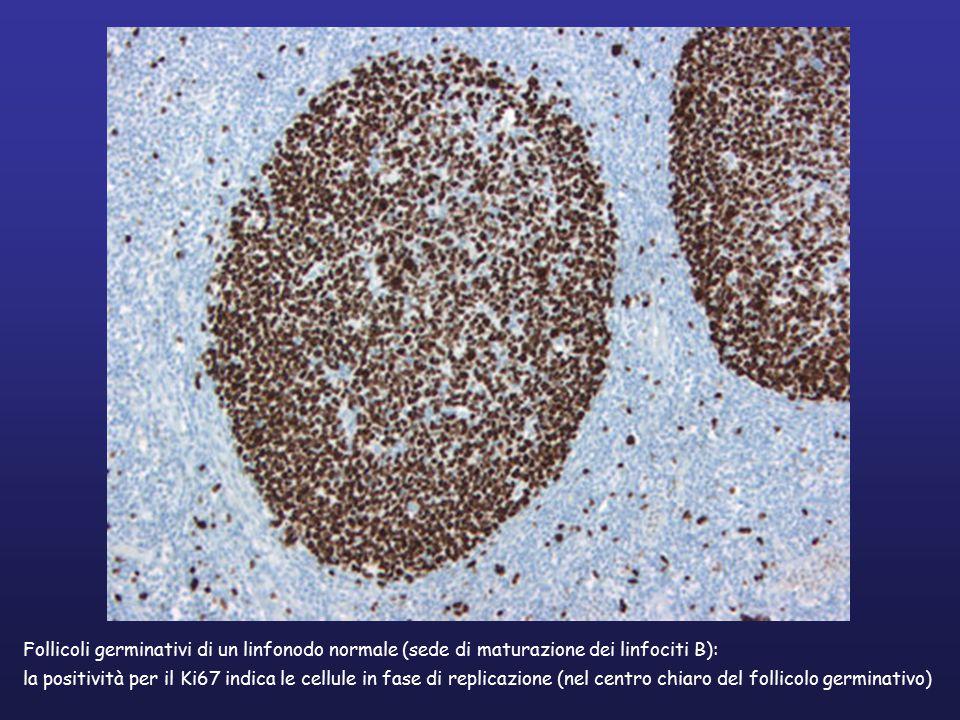 Follicoli germinativi di un linfonodo normale (sede di maturazione dei linfociti B): la positività per il Ki67 indica le cellule in fase di replicazione (racchiuse nel centro chiaro del follicolo germinativo)