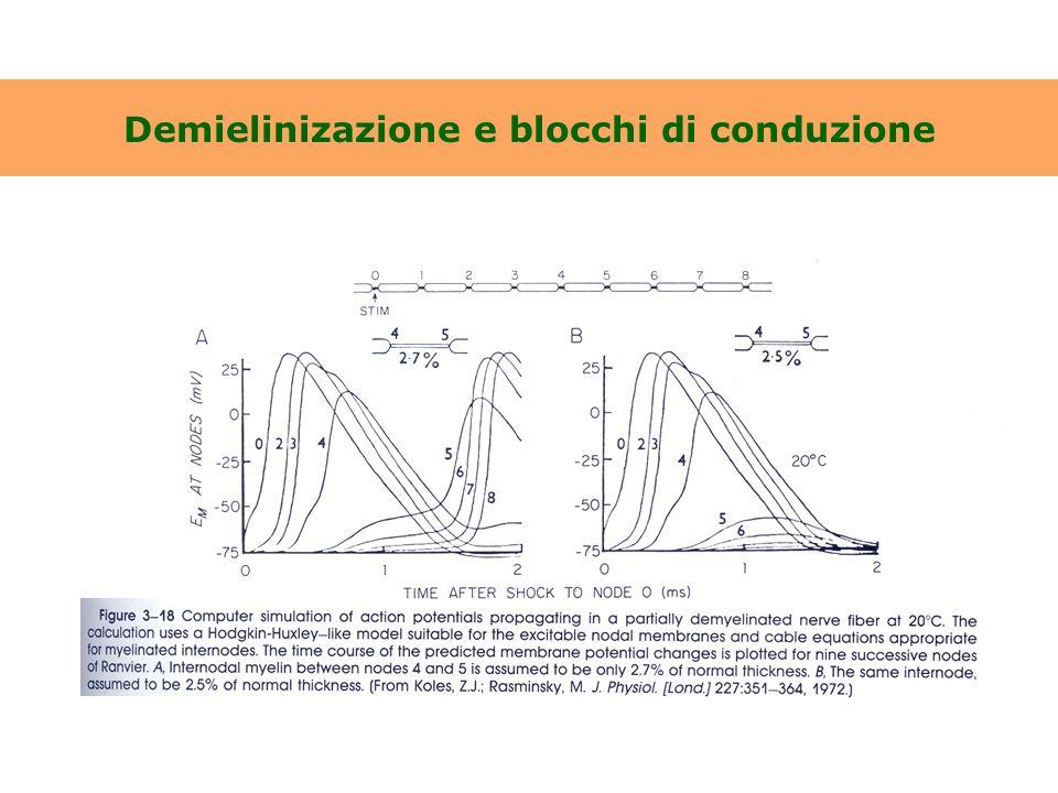 Demielinizazione e blocchi di conduzione
