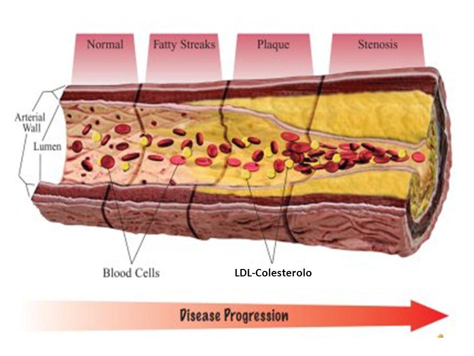 LDL-Colesterolo