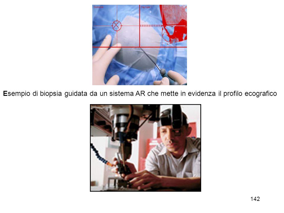 Esempio di biopsia guidata da un sistema AR che mette in evidenza il profilo ecografico