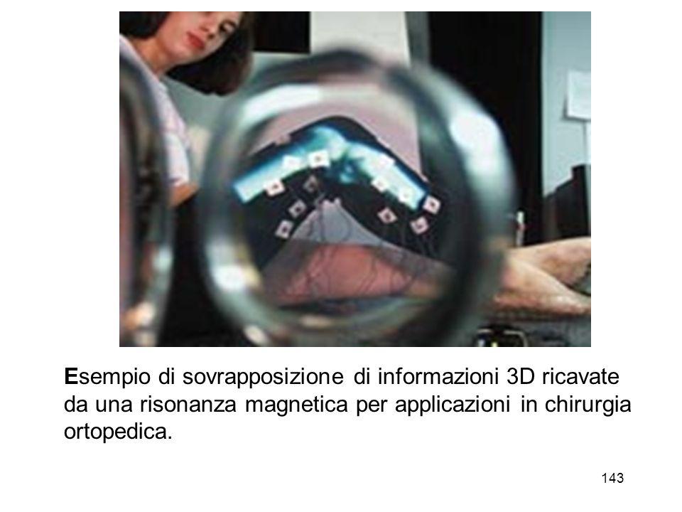Esempio di sovrapposizione di informazioni 3D ricavate da una risonanza magnetica per applicazioni in chirurgia ortopedica.