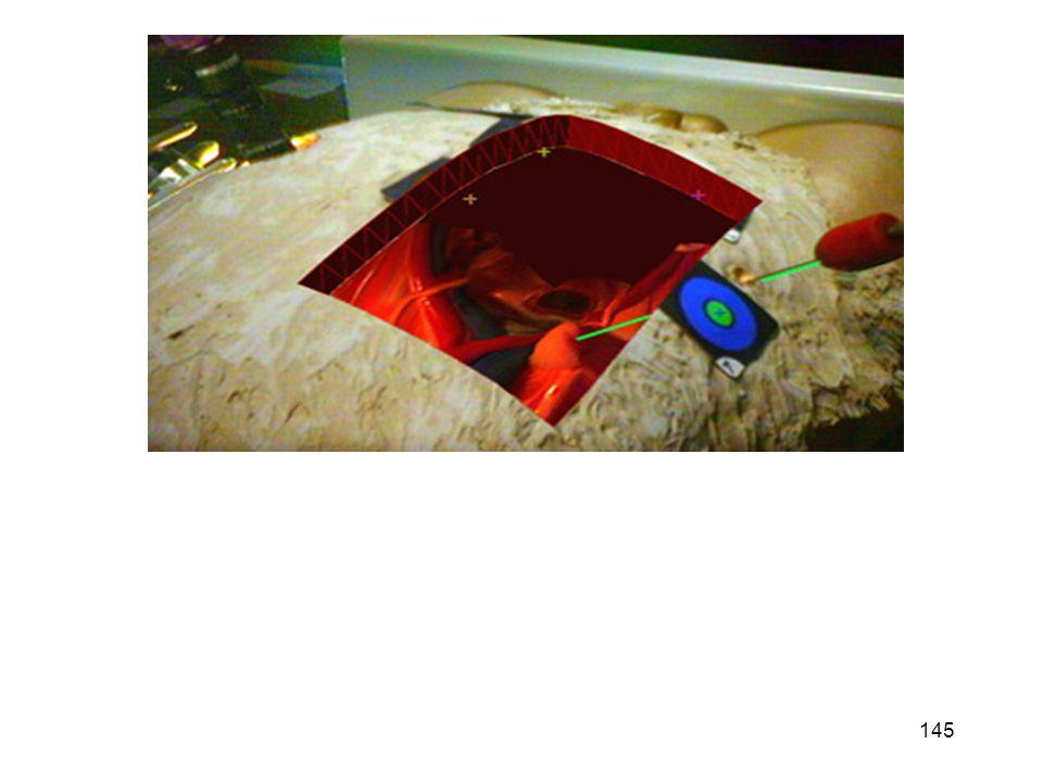 In rosso è evidente l immagine di sintesi sovraimpessa a quella reale dal sistema di AR.