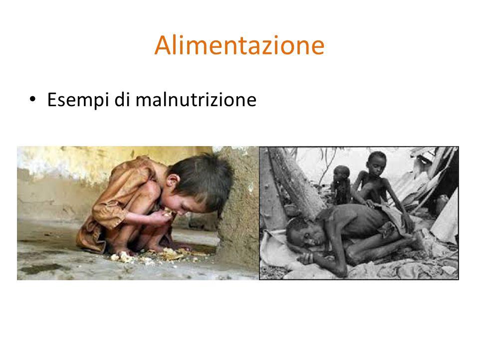 Alimentazione Esempi di malnutrizione