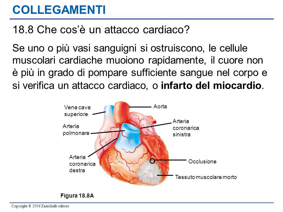 COLLEGAMENTI 18.8 Che cos'è un attacco cardiaco