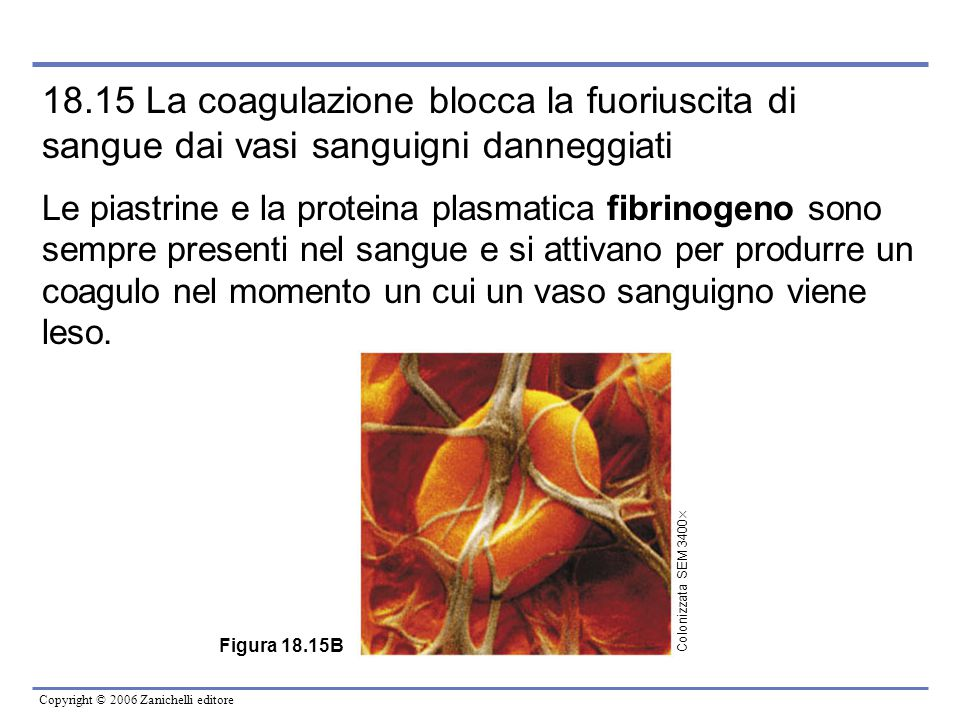 18.15 La coagulazione blocca la fuoriuscita di sangue dai vasi sanguigni danneggiati