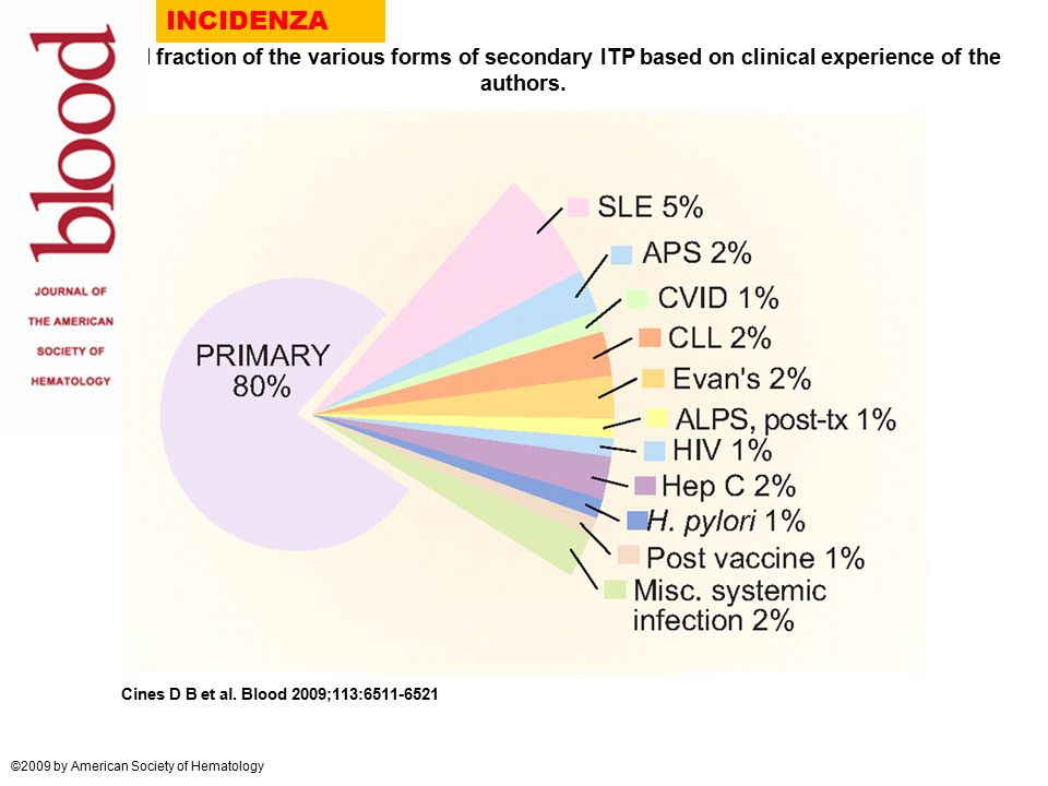 INCIDENZA Estimated fraction of the various forms of secondary ITP based on clinical experience of the authors.
