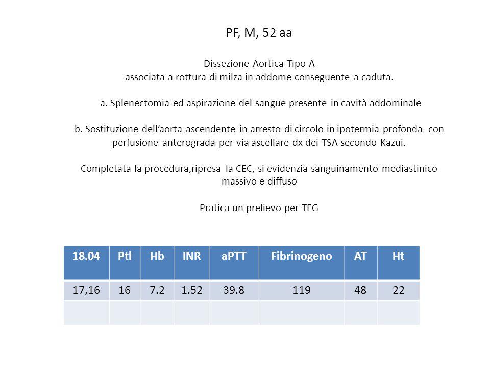 PF, M, 52 aa 18.04 Ptl Hb INR aPTT Fibrinogeno AT Ht 17,16 16 7.2 1.52