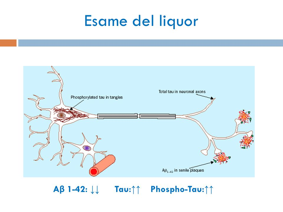 Esame del liquor Aβ 1-42: ↓↓ Tau:↑↑ Phospho-Tau:↑↑