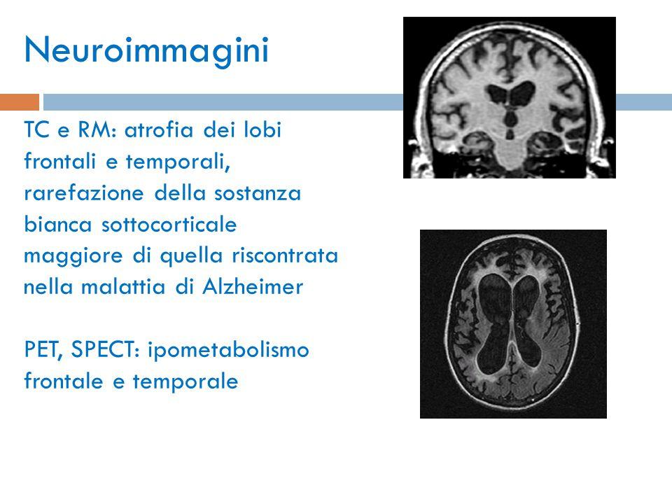 MRI: frontotemporal dementia