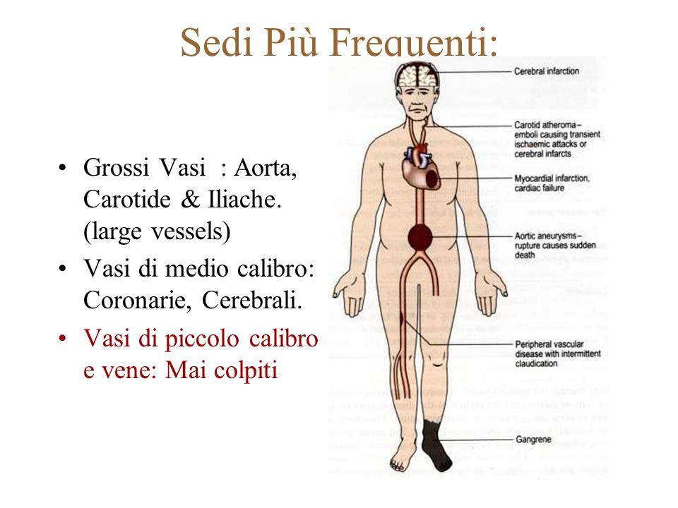 Sedi Più Frequenti: Grossi Vasi : Aorta, Carotide & Iliache. (large vessels) Vasi di medio calibro: Coronarie, Cerebrali.