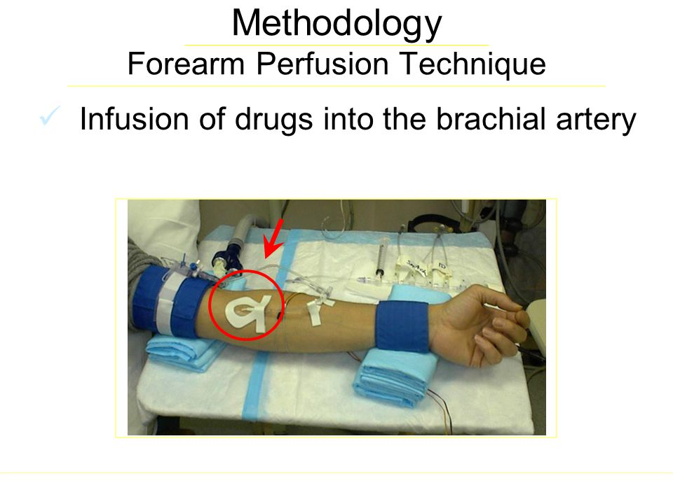 Methodology Forearm Perfusion Technique