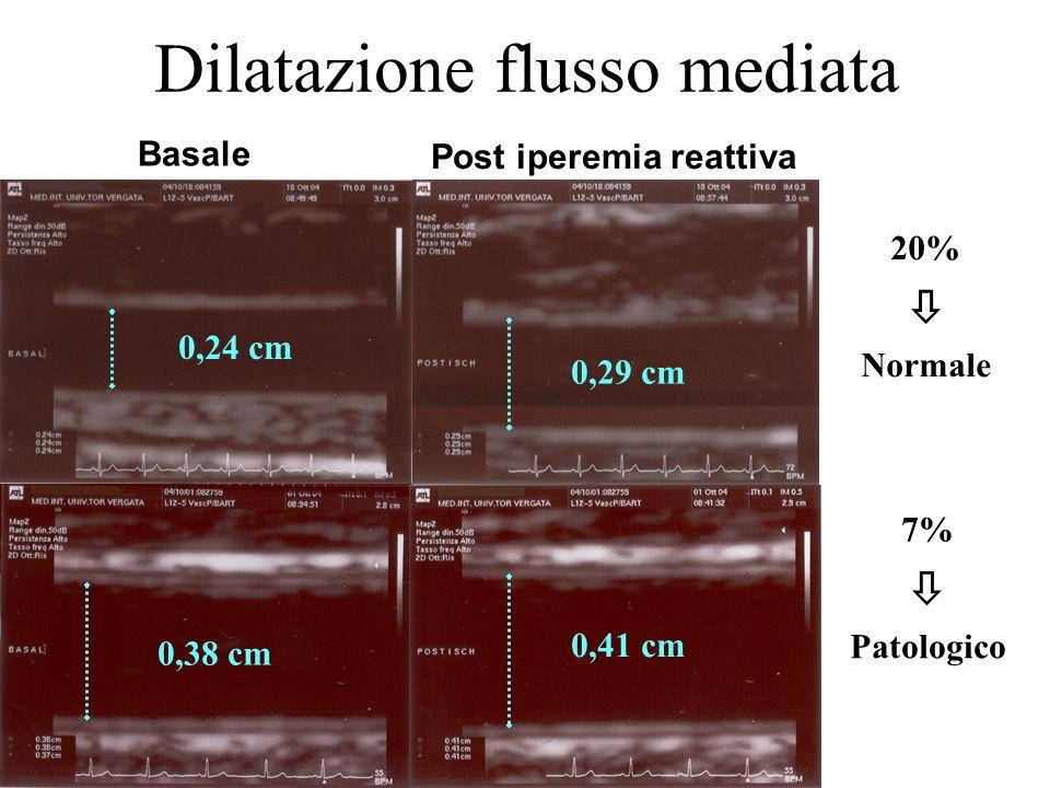 Dilatazione flusso mediata