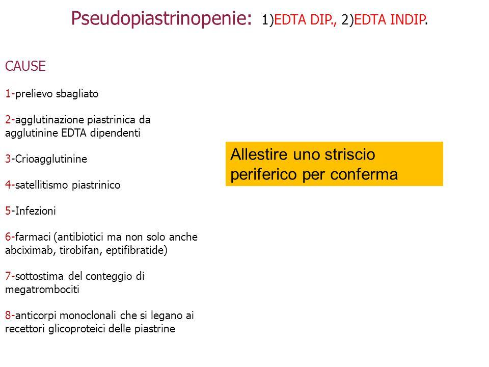 Pseudopiastrinopenie: 1)EDTA DIP., 2)EDTA INDIP.