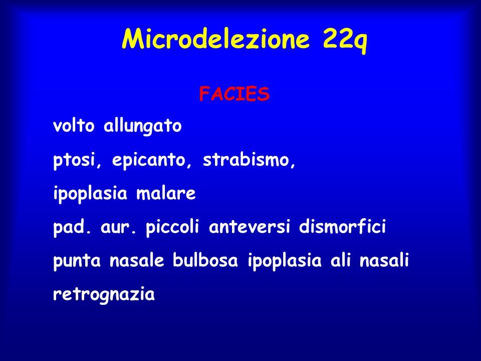 Microdelezione 22q FACIES volto allungato ptosi, epicanto, strabismo,