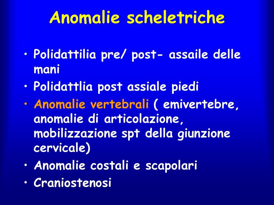 Anomalie scheletriche