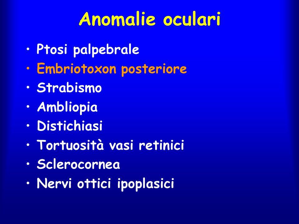 Anomalie oculari Ptosi palpebrale Embriotoxon posteriore Strabismo