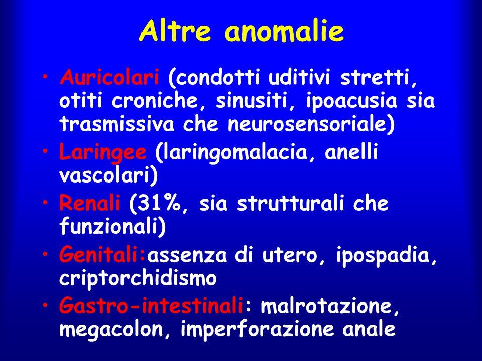 Altre anomalie Auricolari (condotti uditivi stretti, otiti croniche, sinusiti, ipoacusia sia trasmissiva che neurosensoriale)