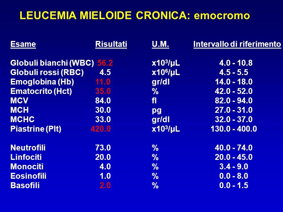 LEUCEMIA MIELOIDE CRONICA: emocromo