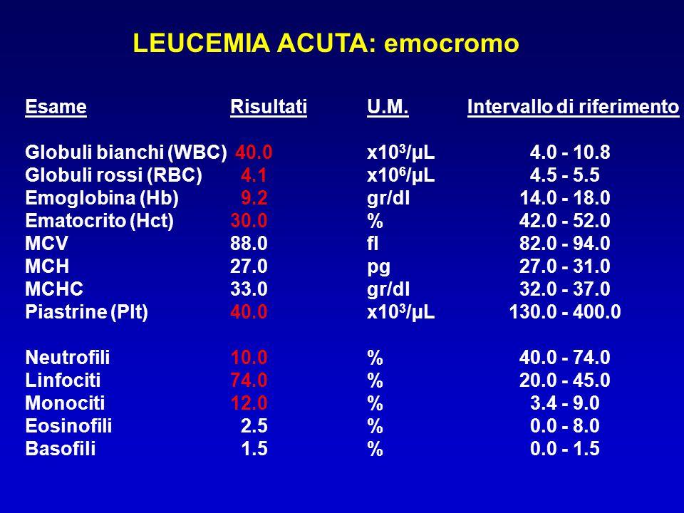 LEUCEMIA ACUTA: emocromo