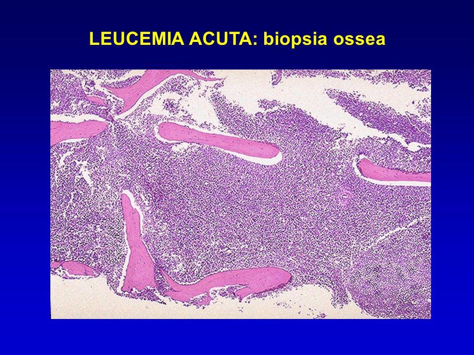 LEUCEMIA ACUTA: biopsia ossea