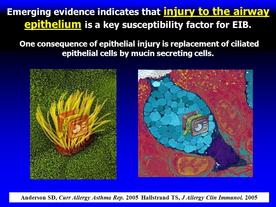 Emerging evidence indicates that injury to the airway epithelium is a key susceptibility factor for EIB. One consequence of epithelial injury is replacement of ciliated epithelial cells by mucin secreting cells.