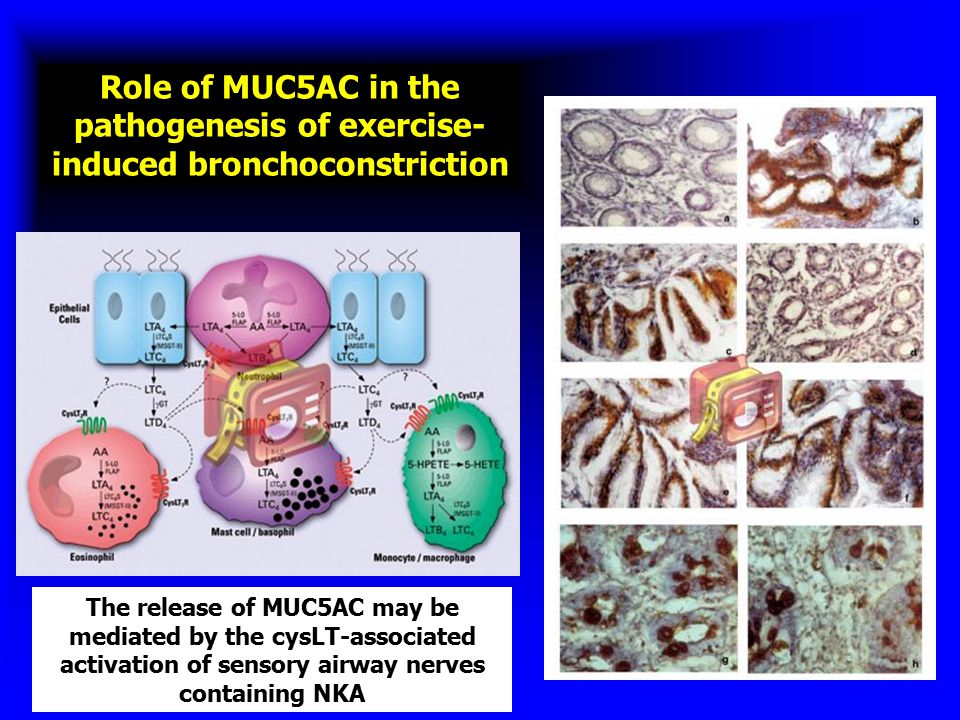 Role of MUC5AC in the pathogenesis of exercise-induced bronchoconstriction