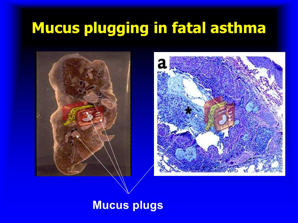 Mucus plugging in fatal asthma
