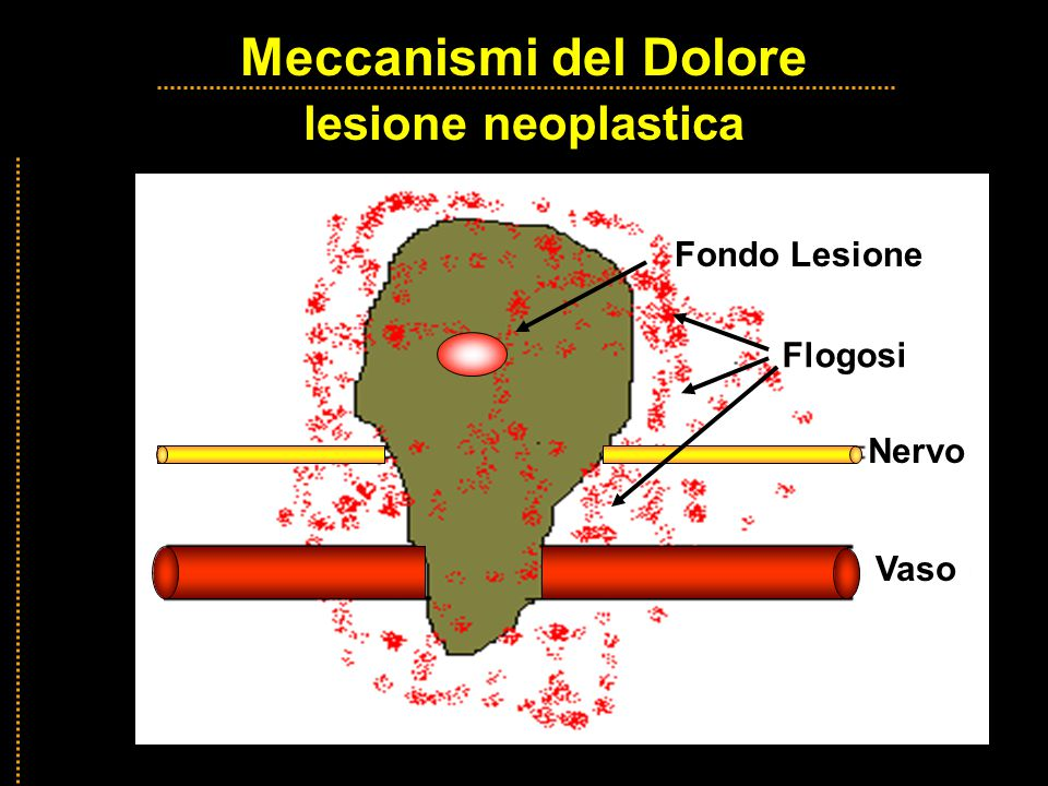 Meccanismi del Dolore lesione neoplastica Fondo Lesione Flogosi Nervo