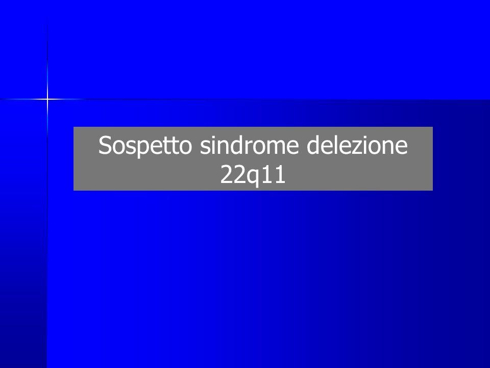 Sospetto sindrome delezione 22q11
