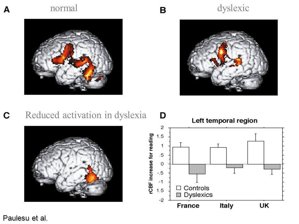 Reduced activation in dyslexia