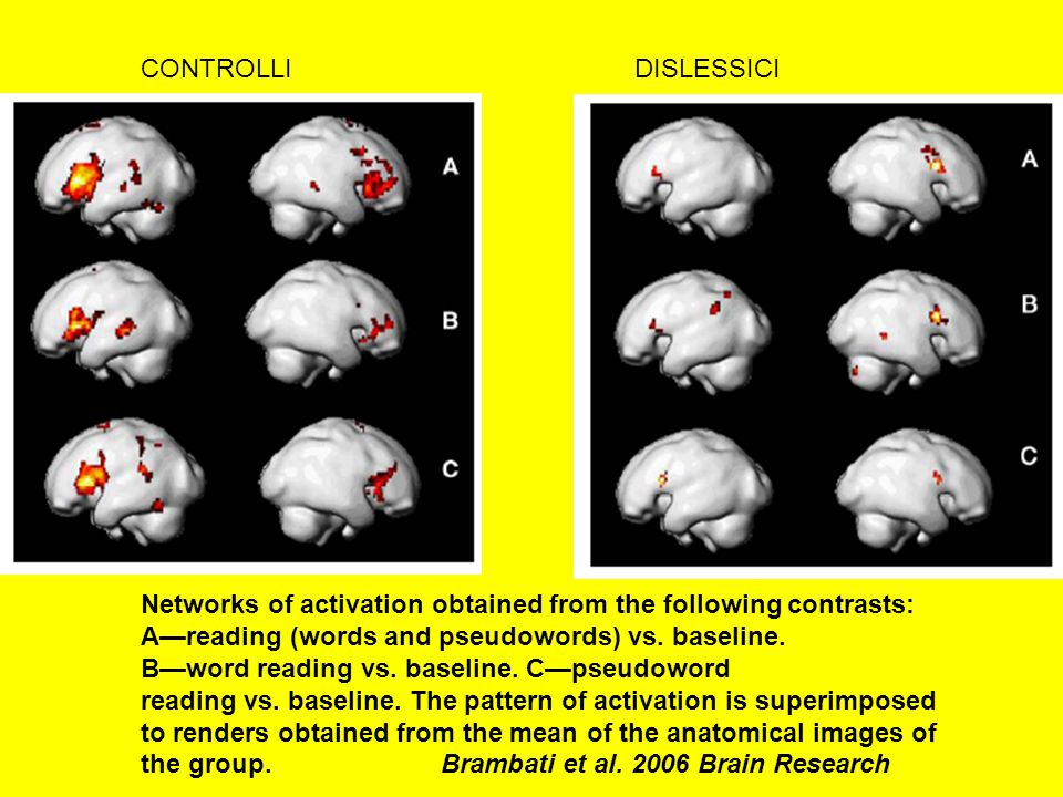 CONTROLLI DISLESSICI. Networks of activation obtained from the following contrasts: A—reading (words and pseudowords) vs. baseline.