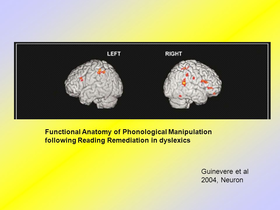 Functional Anatomy of Phonological Manipulation following Reading Remediation in dyslexics