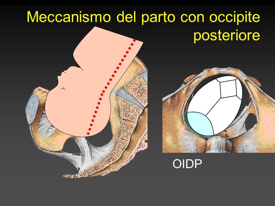 Meccanismo del parto con occipite posteriore