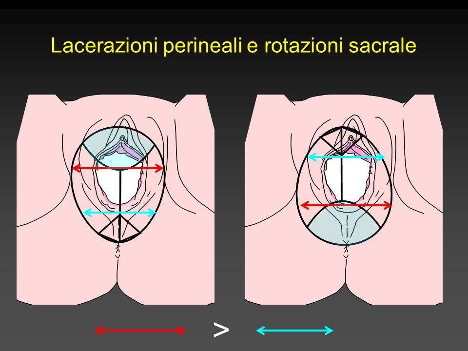 Lacerazioni perineali e rotazioni sacrale