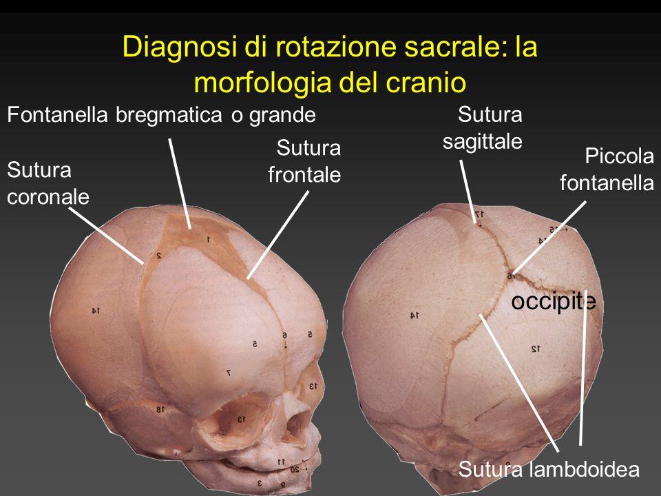 Diagnosi di rotazione sacrale: la morfologia del cranio