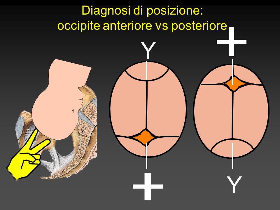 Diagnosi di posizione: occipite anteriore vs posteriore