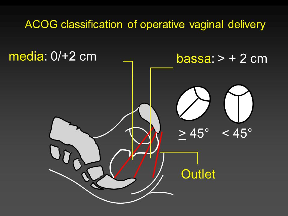 ACOG classification of operative vaginal delivery