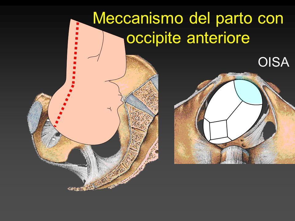 Meccanismo del parto con occipite anteriore