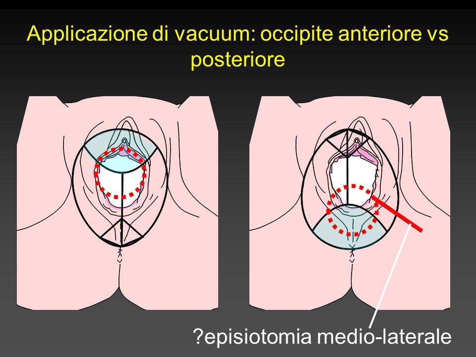 Applicazione di vacuum: occipite anteriore vs posteriore