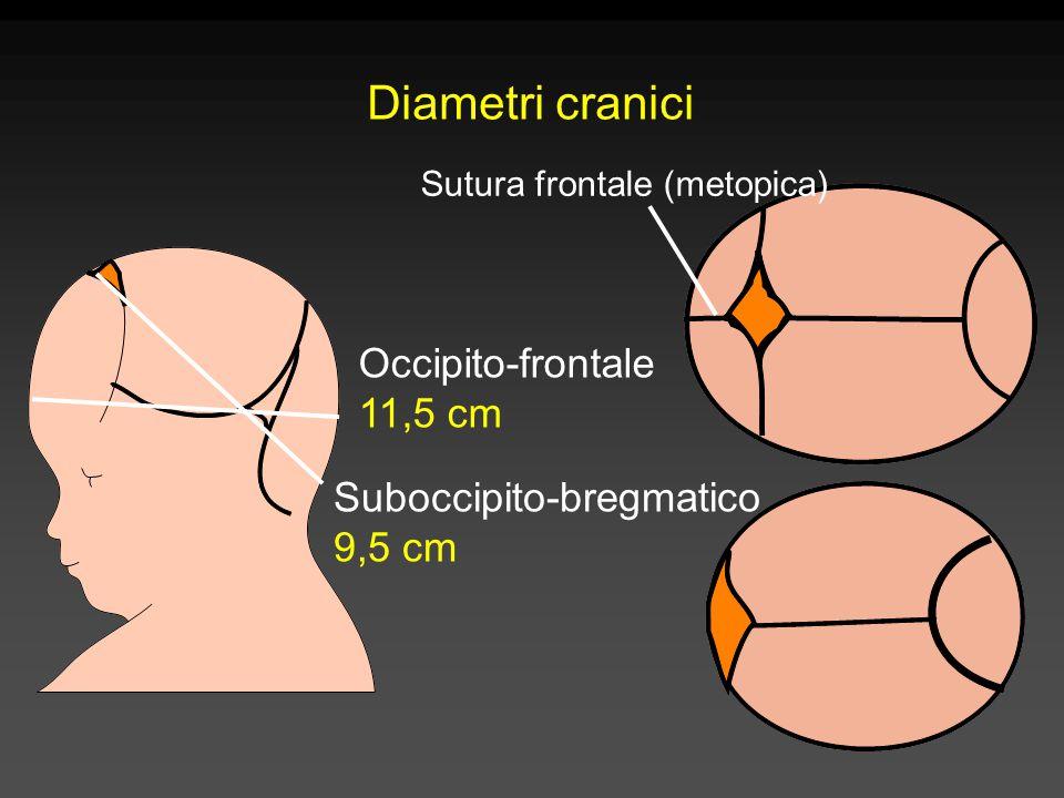 Sutura frontale (metopica)