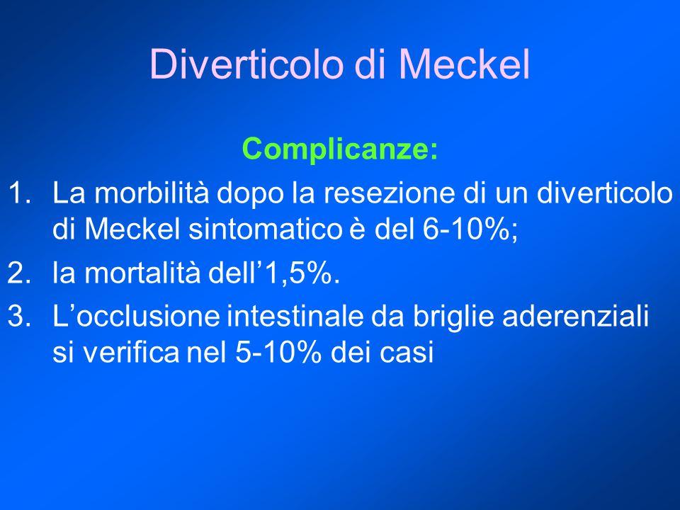 Diverticolo di Meckel Complicanze: