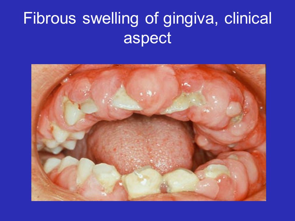 Fibrous swelling of gingiva, clinical aspect